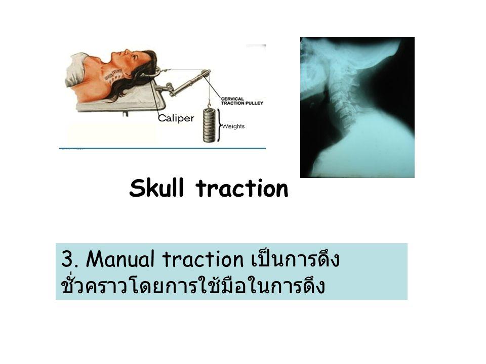 Skull traction 3. Manual traction เป็นการดึง ชั่วคราวโดยการใช้มือในการดึง