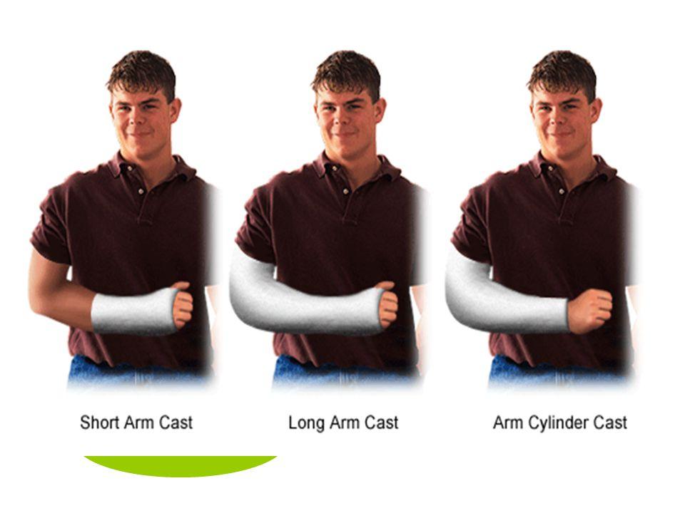 ชนิดของ เฝือก Short leg cast long leg cast Cylinder cast