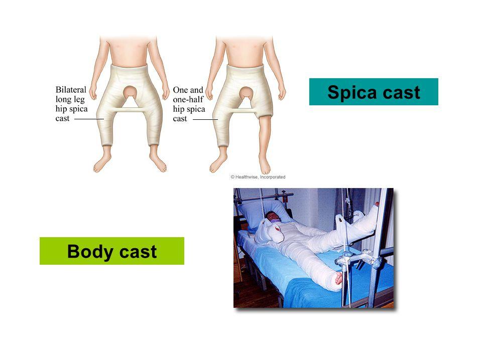 Body cast Spica cast