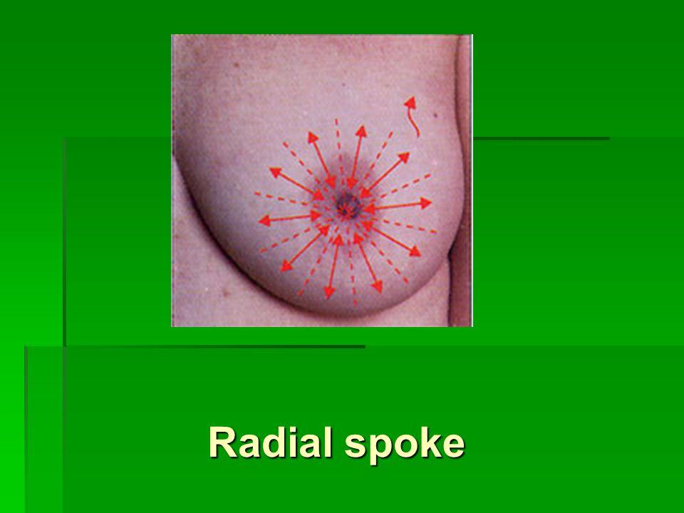 Radial spoke