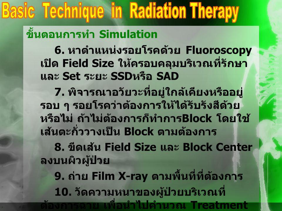 ขั้นตอนการทำ Simulation 6. หาตำแหน่งรอยโรคด้วย Fluoroscopy เปิด Field Size ให้ครอบคลุมบริเวณที่รักษา และ Set ระยะ SSD หรือ SAD 7. พิจารณาอวัยวะที่อยู่