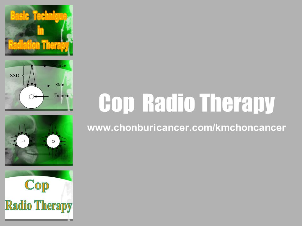 Cop Radio Therapy www.chonburicancer.com/kmchoncancer Source SSD Skin Tumour