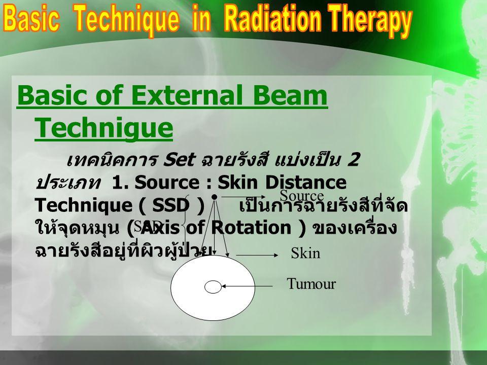 Basic of External Beam Technigue เทคนิคการ Set ฉายรังสี แบ่งเป็น 2 ประเภท 1. Source : Skin Distance Technique ( SSD ) เป็นการฉายรังสีที่จัด ให้จุดหมุน