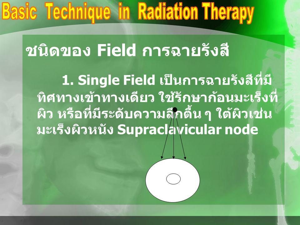 ชนิดของ Field การฉายรังสี 1. Single Field เป็นการฉายรังสีที่มี ทิศทางเข้าทางเดียว ใช้รักษาก้อนมะเร็งที่ ผิว หรือที่มีระดับความลึกตื้น ๆ ใต้ผิวเช่น มะเ