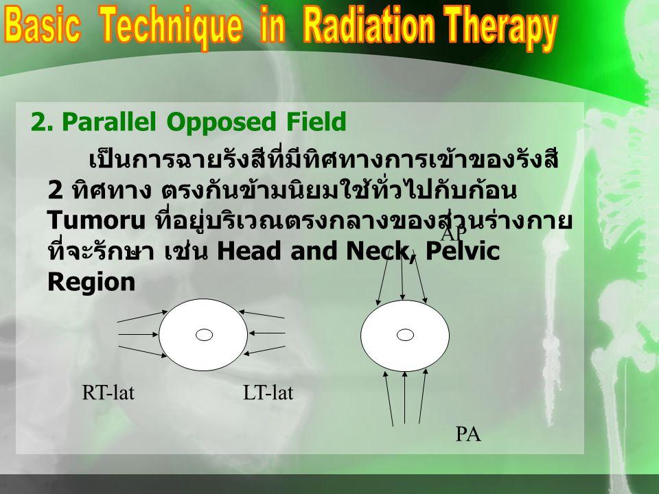 2. Parallel Opposed Field เป็นการฉายรังสีที่มีทิศทางการเข้าของรังสี 2 ทิศทาง ตรงกันข้ามนิยมใช้ทั่วไปกับก้อน Tumoru ที่อยู่บริเวณตรงกลางของส่วนร่างกาย