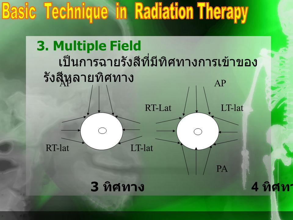 3. Multiple Field เป็นการฉายรังสีที่มีทิศทางการเข้าของ รังสีหลายทิศทาง AP RT-Lat LT-lat PA RT-lat LT-lat 3 ทิศทาง 4 ทิศทาง