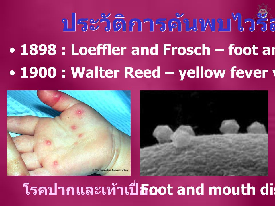 1898 : Loeffler and Frosch – foot and mouth disease virus 1900 : Walter Reed – yellow fever virus โรคปากและเท้าเปื่อย Foot and mouth disease virus ประวัติการค้นพบไวรัส
