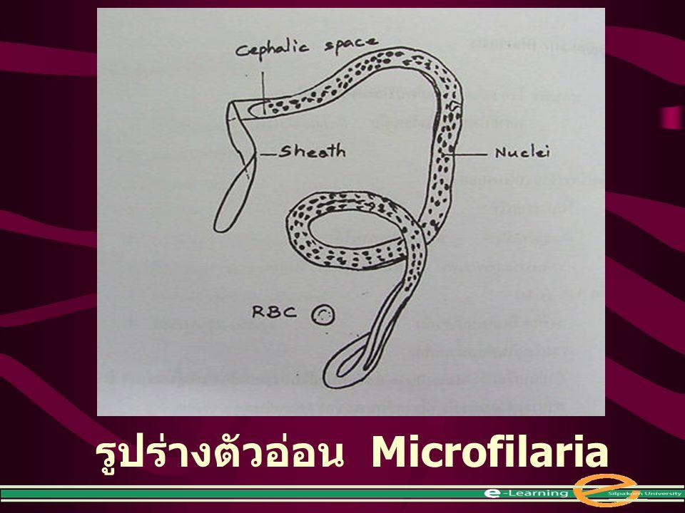 รูปร่างตัวอ่อน Microfilaria
