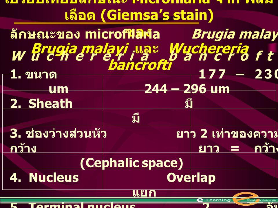 เปรียบเทียบลักษณะ Microfilaria จาก ฟิล์ม เลือด (Giemsa's stain) ของ Brugia malayi และ Wuchereria bancrofti ลักษณะของ microfilaria Brugia malayi Wucher