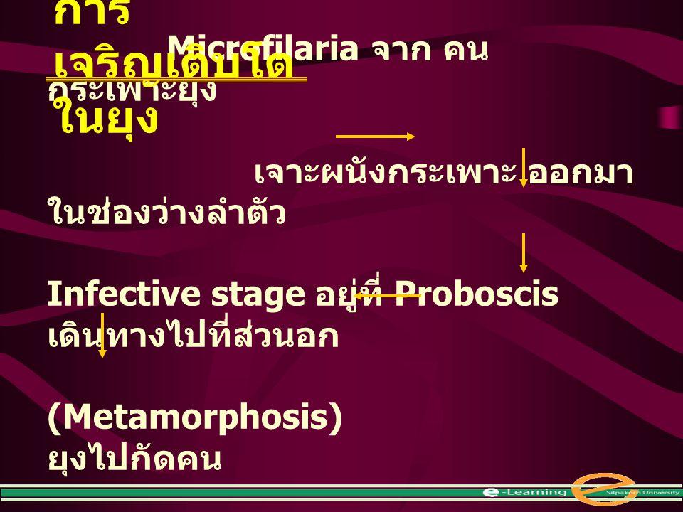 Microfilaria จาก คน กระเพาะยุง เจาะผนังกระเพาะ ออกมา ในช่องว่างลำตัว Infective stage อยู่ที่ Proboscis เดินทางไปที่ส่วนอก (Metamorphosis) ยุงไปกัดคน ก