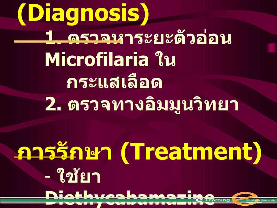 การตรวจวินิจฉัย (Diagnosis) 1. ตรวจหาระยะตัวอ่อน Microfilaria ใน กระแสเลือด 2. ตรวจทางอิมมูนวิทยา การรักษา (Treatment) - ใช้ยา Diethycabamazine citrat