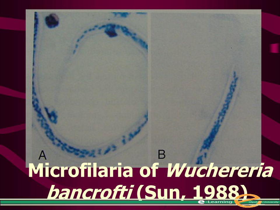 Microfilaria of Wuchereria bancrofti (Sun, 1988)