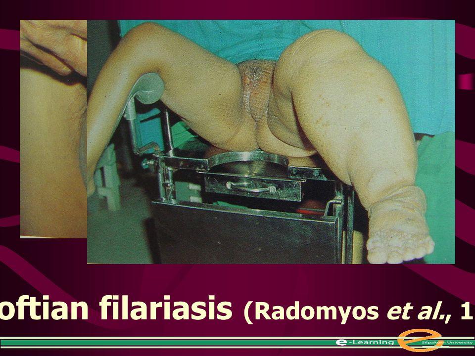 Bancroftian filariasis (Radomyos et al., 1997)