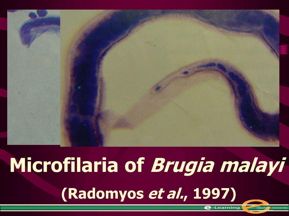 Microfilaria of Brugia malayi (Radomyos et al., 1997)