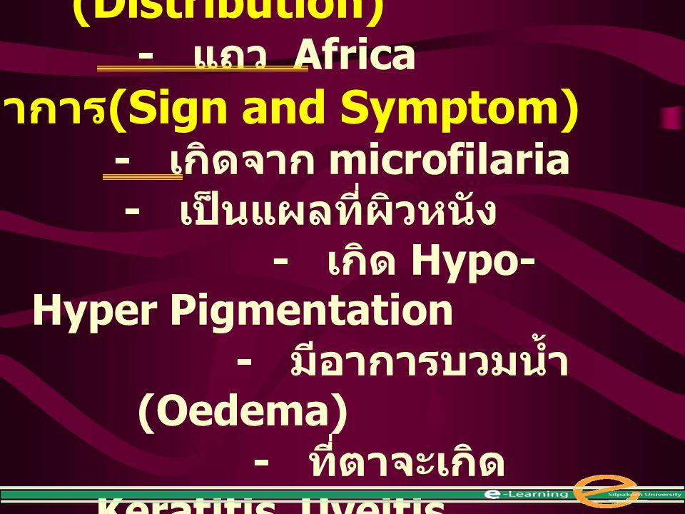 การแพร่กระจาย (Distribution) - แถว Africa อาการ (Sign and Symptom) - เกิดจาก microfilaria - เป็นแผลที่ผิวหนัง - เกิด Hypo- Hyper Pigmentation - มีอากา