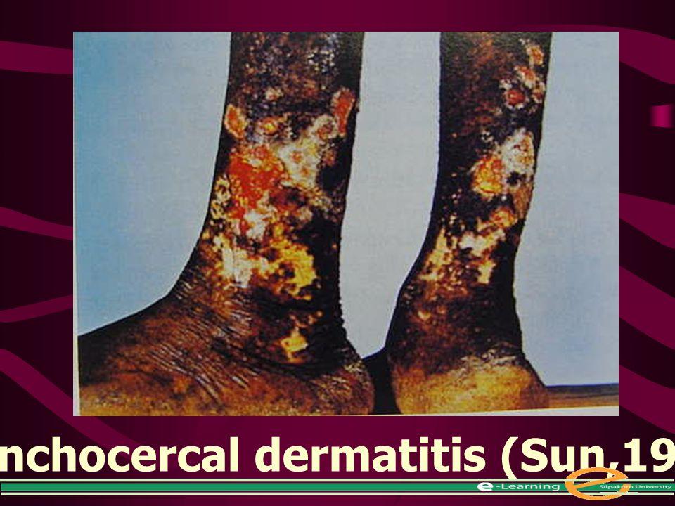 Onchocercal dermatitis (Sun,1988)
