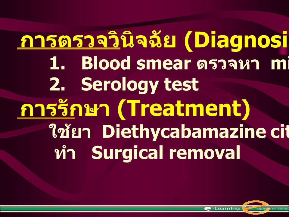 การตรวจวินิจฉัย (Diagnosis) 1. Blood smear ตรวจหา microfilaria 2. Serology test การรักษา (Treatment) ใช้ยา Diethycabamazine citrate (DEC) ทำ Surgical