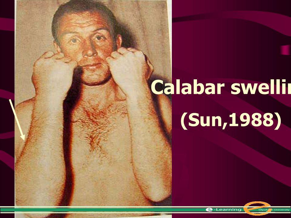 Calabar swelling (Sun,1988)