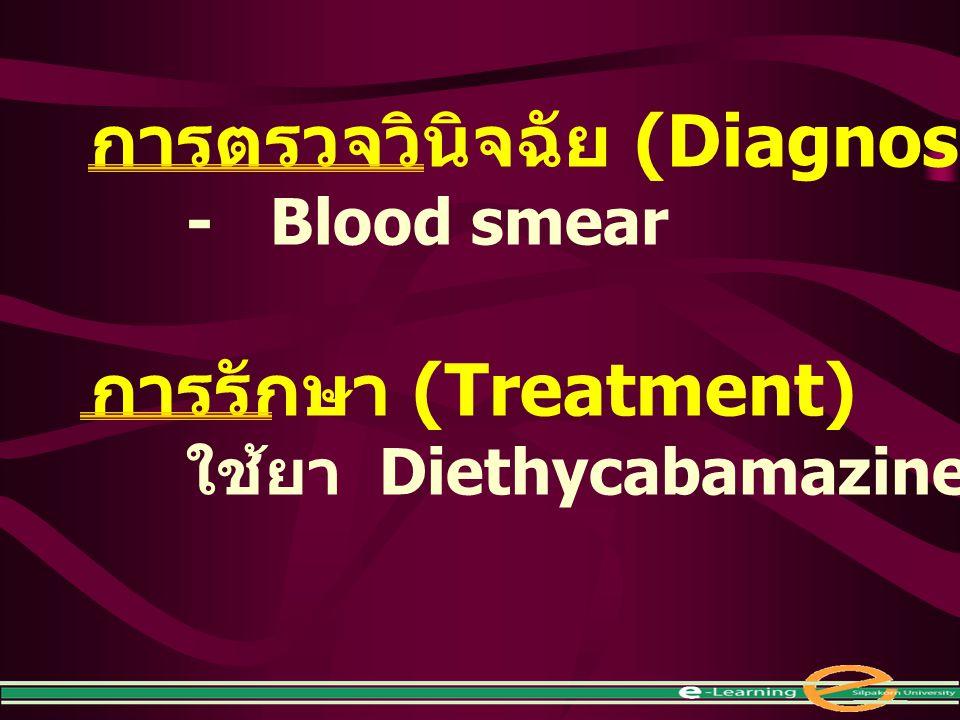 การตรวจวินิจฉัย (Diagnosis) - Blood smear การรักษา (Treatment) ใช้ยา Diethycabamazine citrate (DEC)