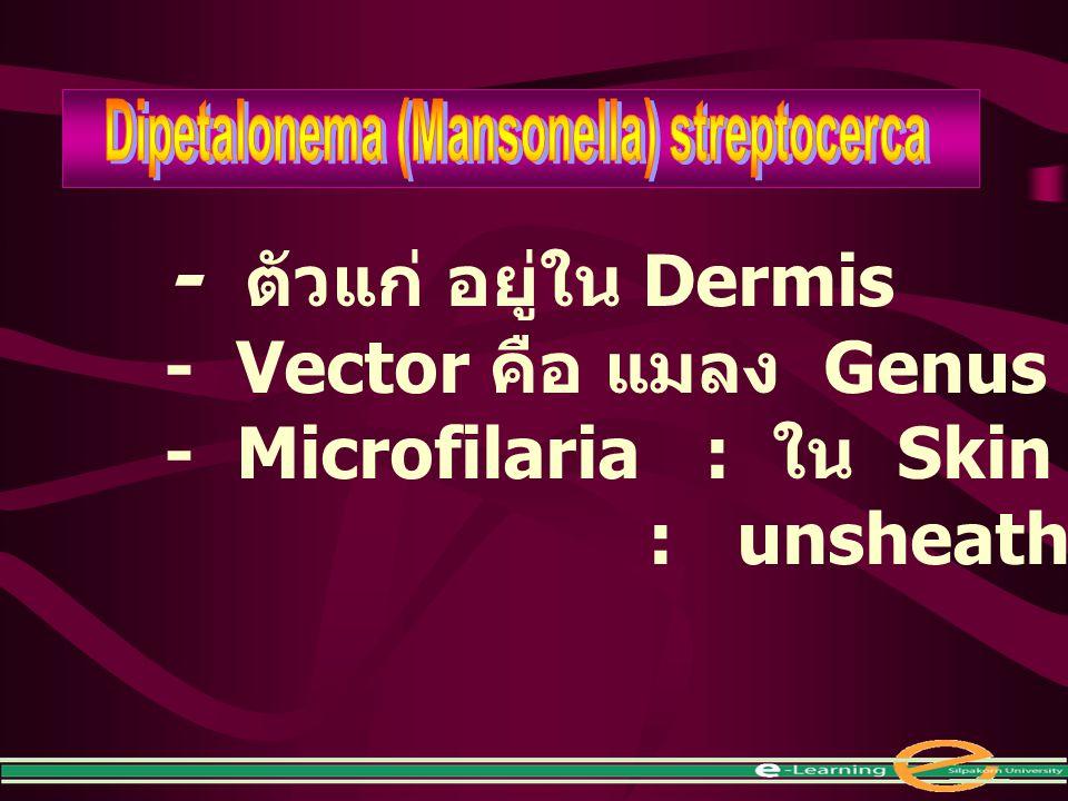 - ตัวแก่ อยู่ใน Dermis - Vector คือ แมลง Genus Culicoides - Microfilaria : ใน Skin : unsheathed