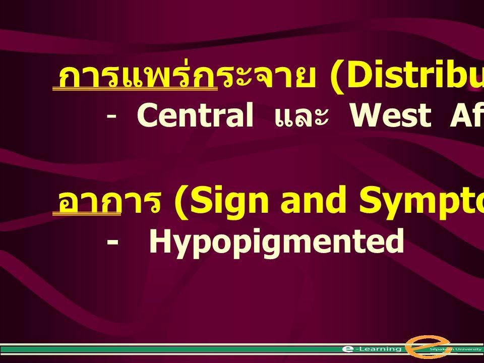 การแพร่กระจาย (Distribution) - Central และ West Africa อาการ (Sign and Symptom) - Hypopigmented