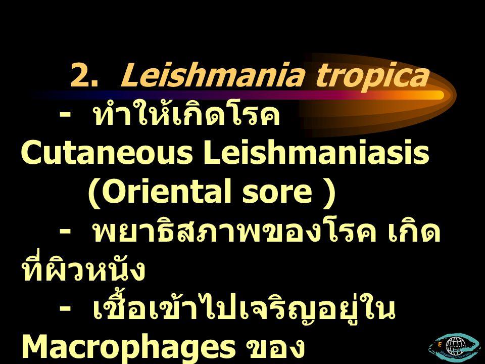 2. Leishmania tropica - ทำให้เกิดโรค Cutaneous Leishmaniasis (Oriental sore ) - พยาธิสภาพของโรค เกิด ที่ผิวหนัง - เชื้อเข้าไปเจริญอยู่ใน Macrophages ข