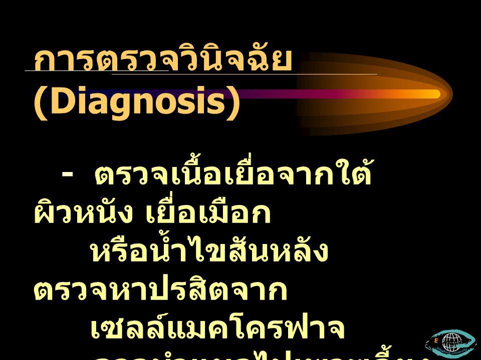 การตรวจวินิจฉัย (Diagnosis) - ตรวจเนื้อเยื่อจากใต้ ผิวหนัง เยื่อเมือก หรือน้ำไขสันหลัง ตรวจหาปรสิตจาก เซลล์แมคโครฟาจ - อาจนำแผลไปเพาะเลี้ยง ในอาหาร No