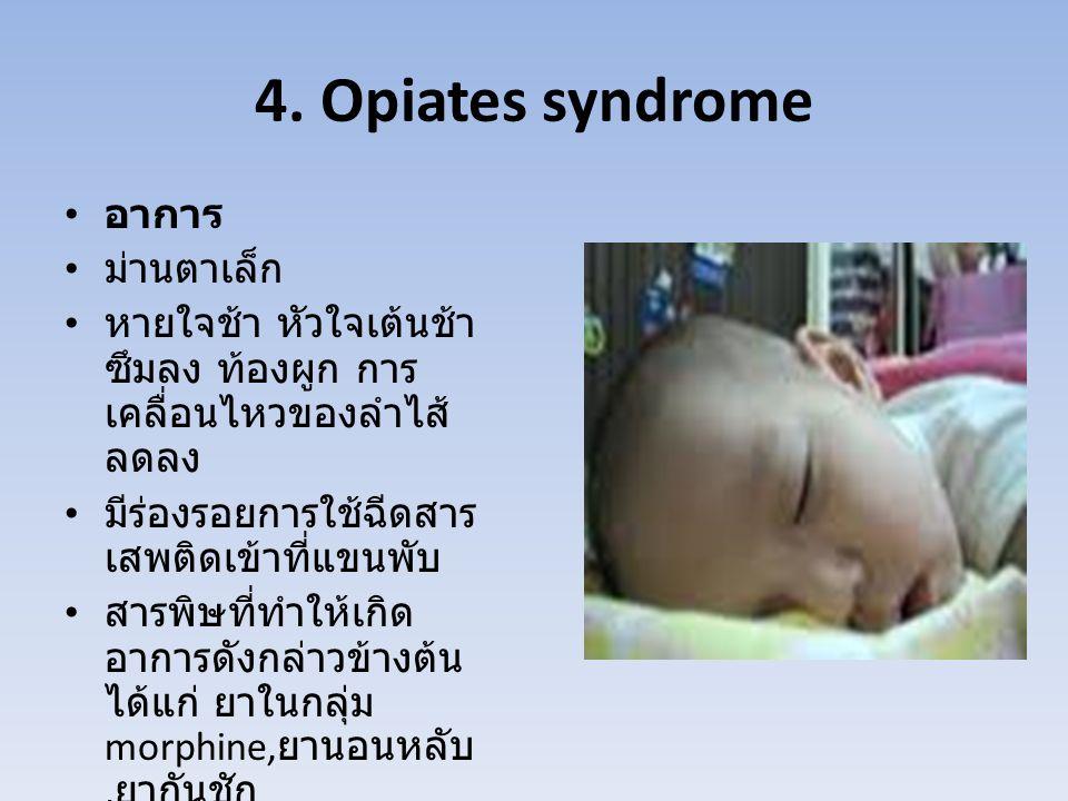 4. Opiates syndrome อาการ ม่านตาเล็ก หายใจช้า หัวใจเต้นช้า ซึมลง ท้องผูก การ เคลื่อนไหวของลำไส้ ลดลง มีร่องรอยการใช้ฉีดสาร เสพติดเข้าที่แขนพับ สารพิษท