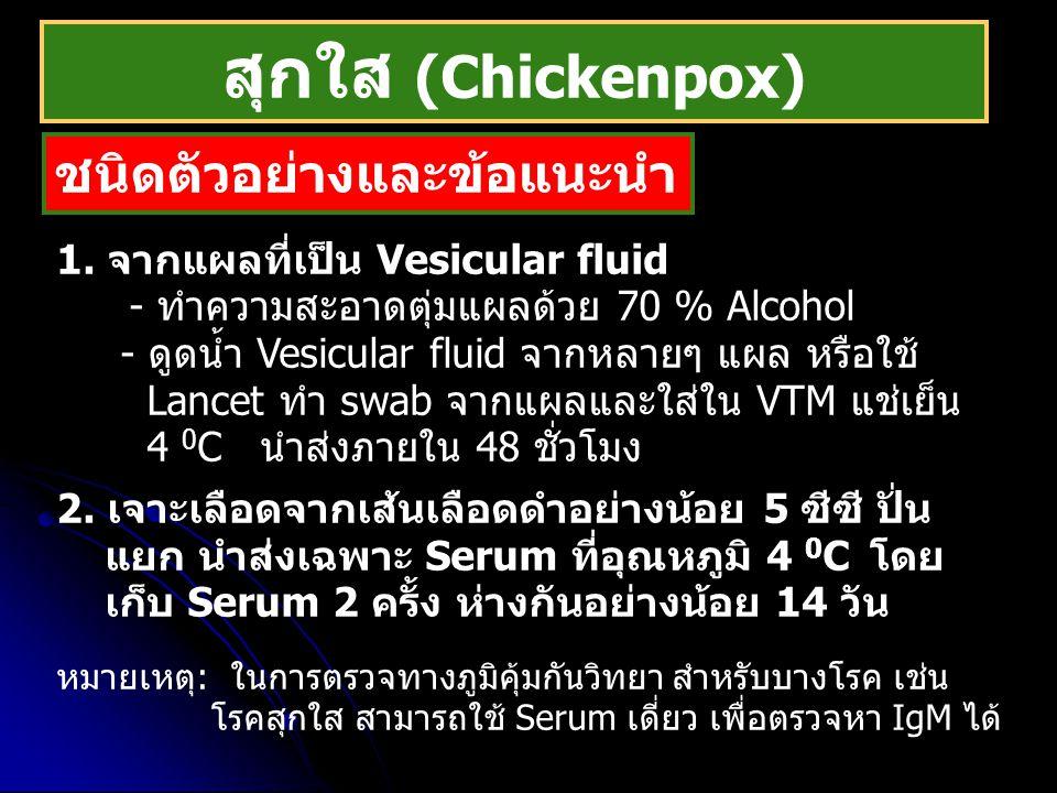 สุกใส (Chickenpox) ชนิดตัวอย่างและข้อแนะนำ 1. จากแผลที่เป็น Vesicular fluid - ทำความสะอาดตุ่มแผลด้วย 70 % Alcohol - ดูดน้ำ Vesicular fluid จากหลายๆ แผ