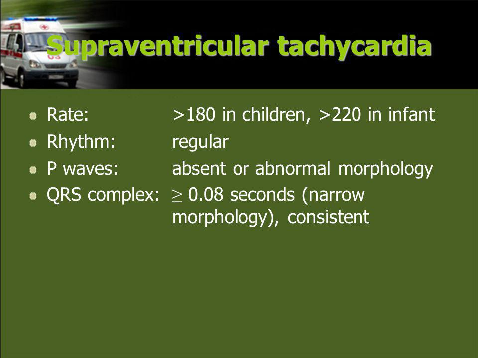 Rate:>180 in children, >220 in infant Rhythm: regular P waves: absent or abnormal morphology QRS complex: ≥ 0.08 seconds (narrow morphology), consistent