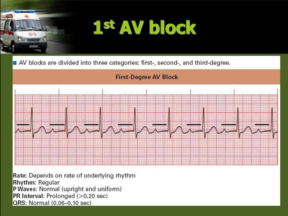 1 st AV block