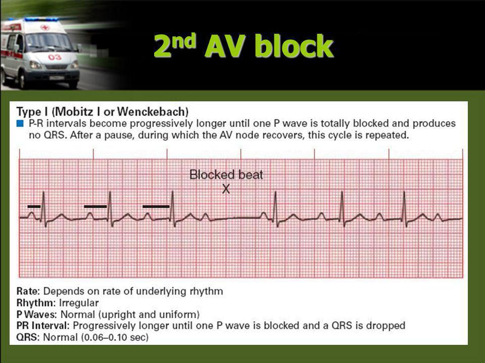 2 nd AV block