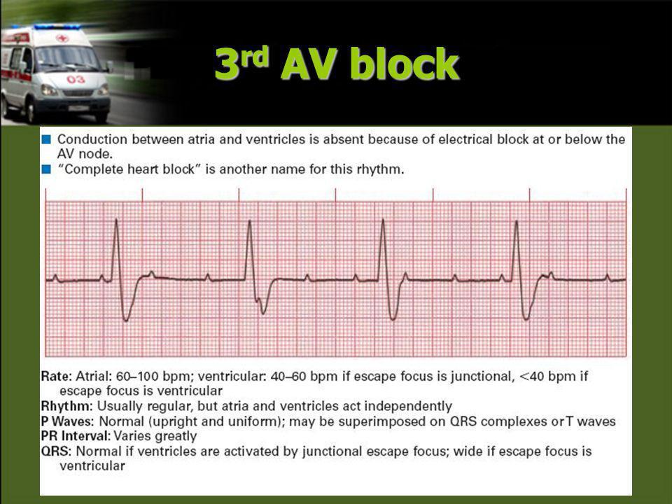3 rd AV block