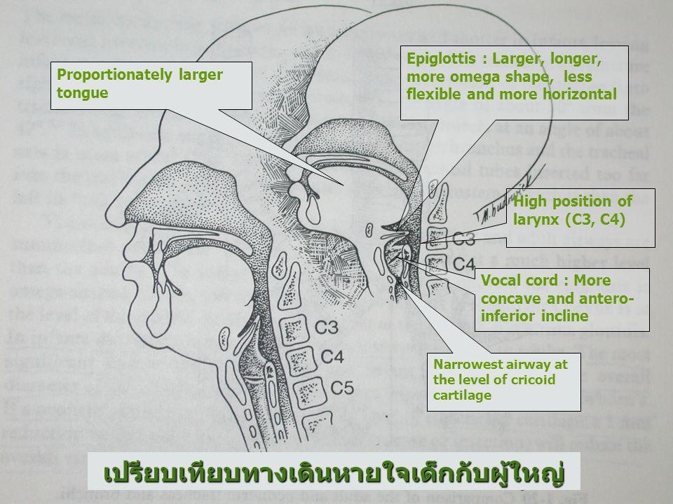 เปรียบเทียบทางเดินหายใจเด็กกับผู้ใหญ่ ลิ้นของเด็กเมื่อเทียบกับ ขนาดช่องปากมีขนาดใหญ่ กว่าผู้ใหญ่ เนื่องจาก vocal cord อยู่ใน แนว antero-inferior ทำให้ เกิดมุมกับ glottic opening ดังนั้นการใช้ blade ตรง จึง ทำให้มองเห็น glottic opening ได้ดีกว่า