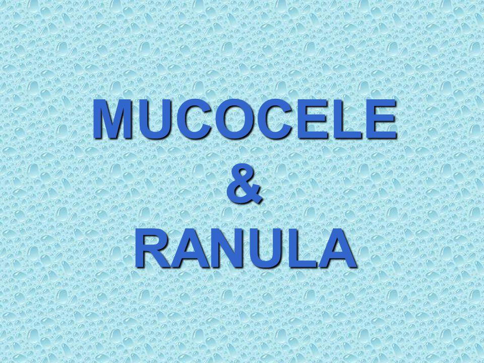 MUCOCELE คือ ช่องว่างภายในเนื้อเยื่อที่มีน้ำลาย ขังอยู่ เป็นถุงน้ำที่เกิดสัมพันธ์กับ minor salivary gland แบ่งเป็น 2 ชนิดตามสาเหตุการเกิด คือ 1.Extravasation mucocele (Mucous extravasation cyst) 2.