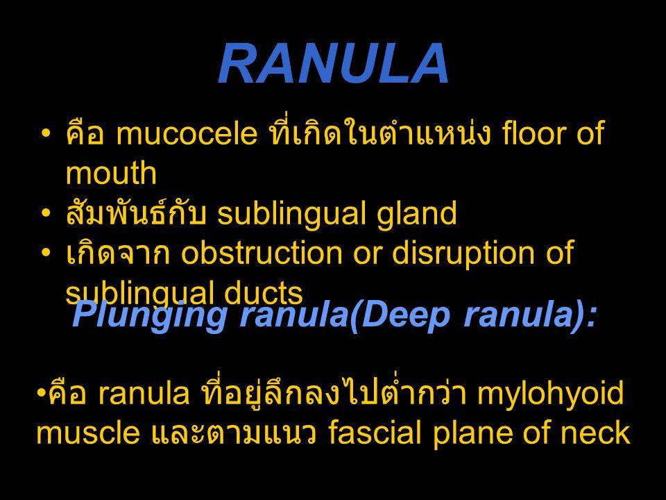 RANULA คือ mucocele ที่เกิดในตำแหน่ง floor of mouth สัมพันธ์กับ sublingual gland เกิดจาก obstruction or disruption of sublingual ducts Plunging ranula
