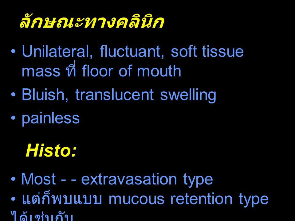 ลักษณะทางคลินิก l Unilateral, fluctuant, soft tissue mass ที่ floor of mouth Bluish, translucent swelling painless Histo: Most - - extravasation type