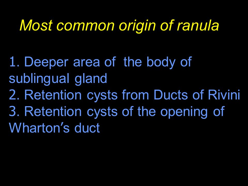Most common origin of ranula 1. Deeper area of the body of sublingual gland 2. Retention cysts from Ducts of Rivini 3. Retention cysts of the opening