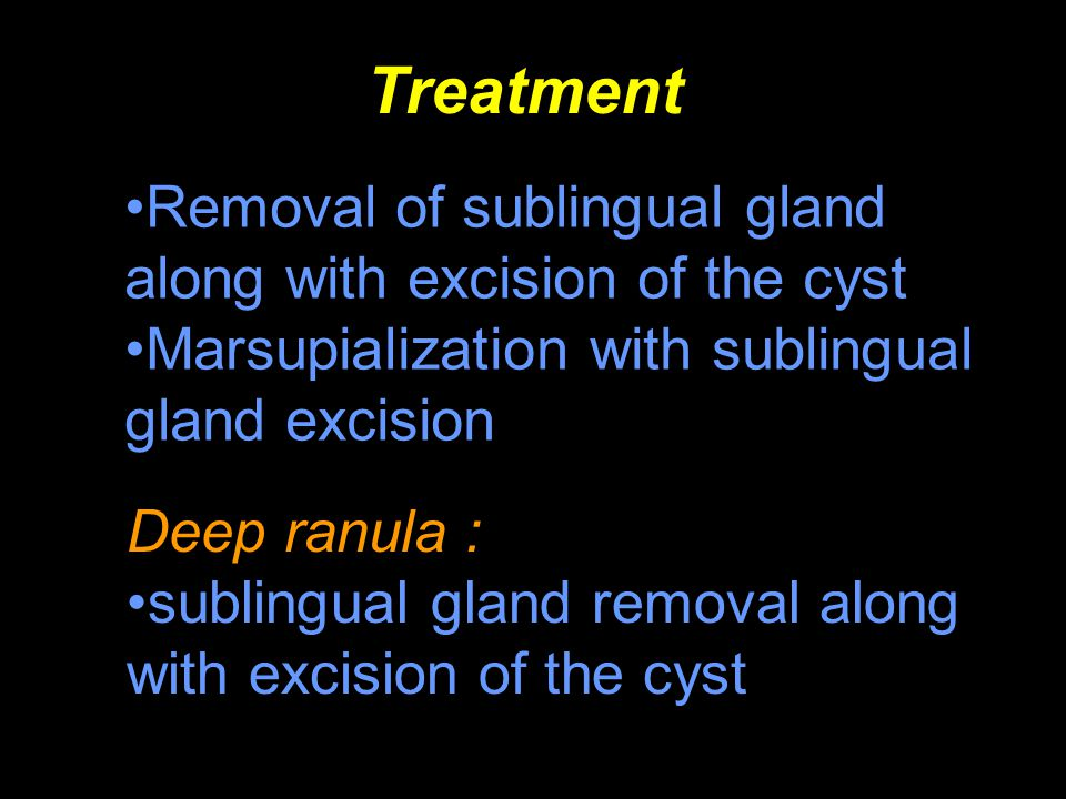 Treatment Removal of sublingual gland along with excision of the cyst Marsupialization with sublingual gland excision Deep ranula : sublingual gland r