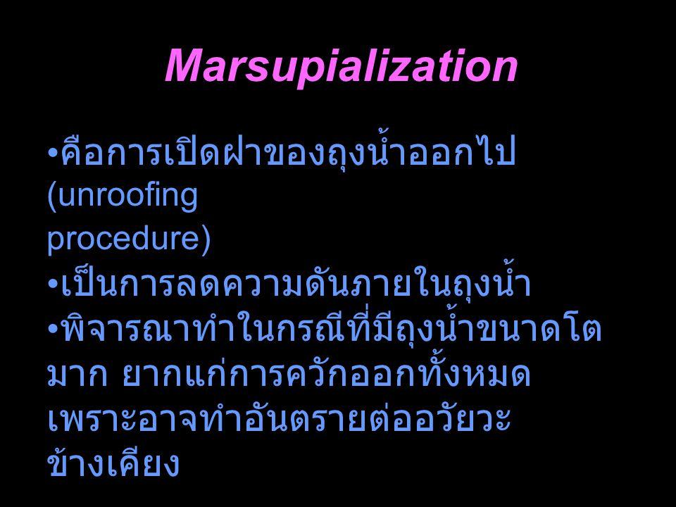 Marsupialization คือการเปิดฝาของถุงน้ำออกไป (unroofing procedure) เป็นการลดความดันภายในถุงน้ำ พิจารณาทำในกรณีที่มีถุงน้ำขนาดโต มาก ยากแก่การควักออกทั้