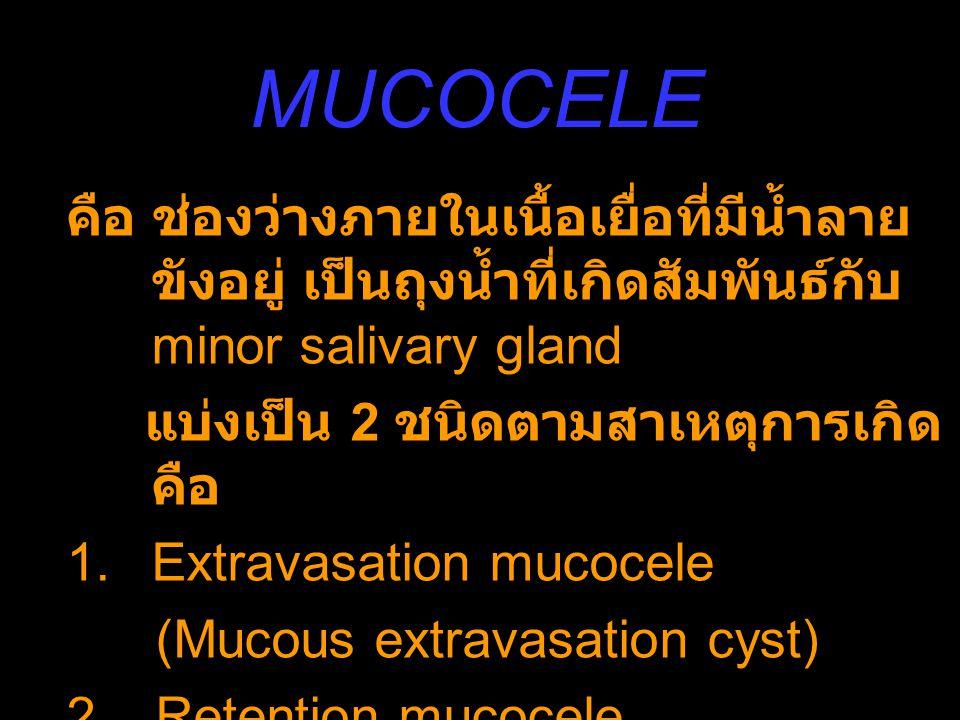 MUCOCELE คือ ช่องว่างภายในเนื้อเยื่อที่มีน้ำลาย ขังอยู่ เป็นถุงน้ำที่เกิดสัมพันธ์กับ minor salivary gland แบ่งเป็น 2 ชนิดตามสาเหตุการเกิด คือ 1.Extrav