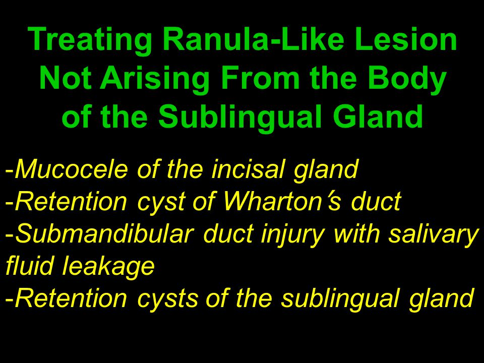 Treating Ranula-Like Lesion Not Arising From the Body of the Sublingual Gland -Mucocele of the incisal gland -Retention cyst of Wharton ' s duct -Subm