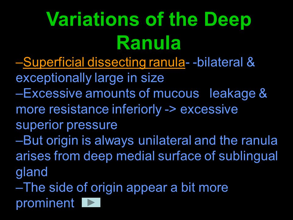 Variations of the Deep Ranula –Superficial dissecting ranula- -bilateral & exceptionally large in size –Excessive amounts of mucous leakage & more res