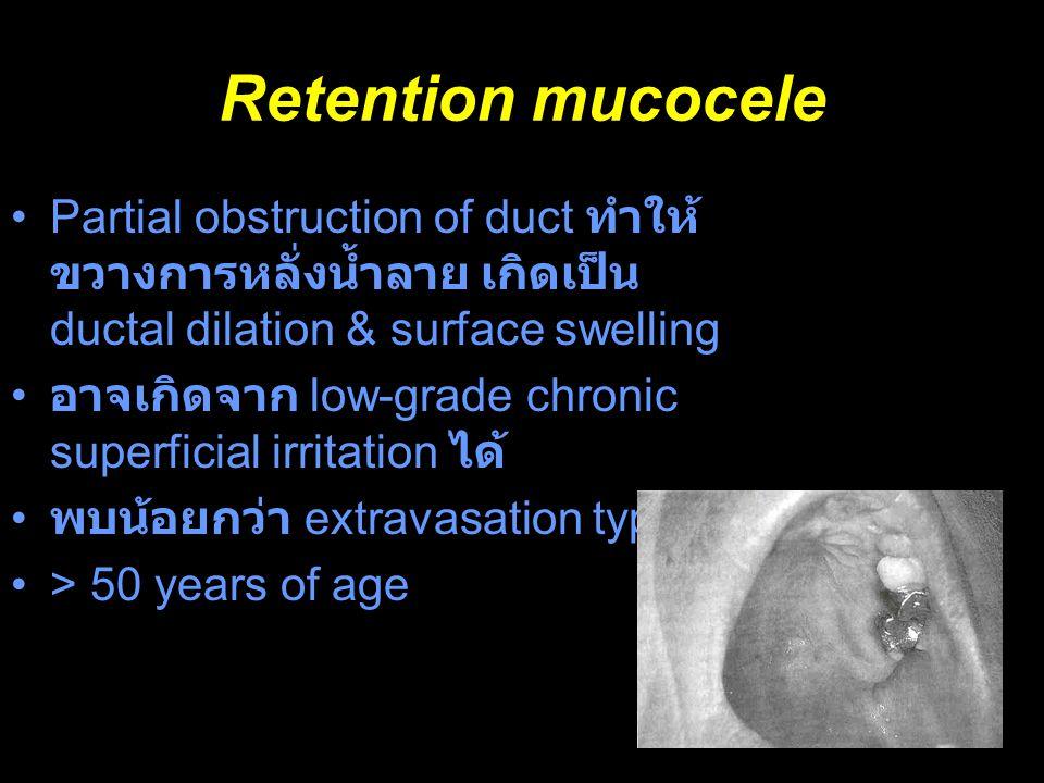 Retention mucocele Partial obstruction of duct ทำให้ ขวางการหลั่งน้ำลาย เกิดเป็น ductal dilation & surface swelling อาจเกิดจาก low-grade chronic super