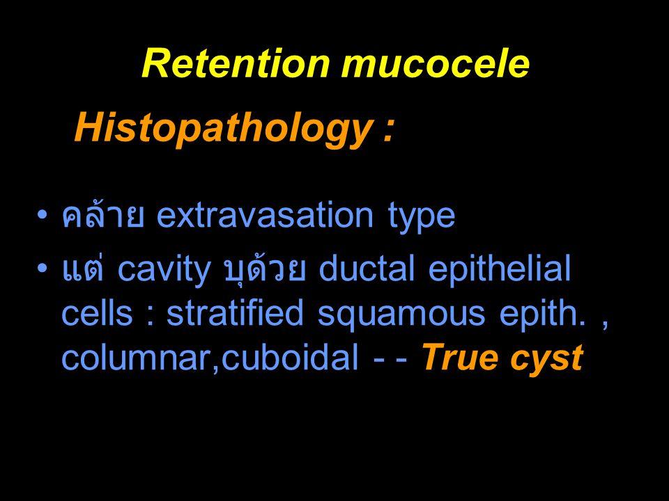 Retention mucocele คล้าย extravasation type แต่ cavity บุด้วย ductal epithelial cells : stratified squamous epith., columnar,cuboidal - - True cyst Hi