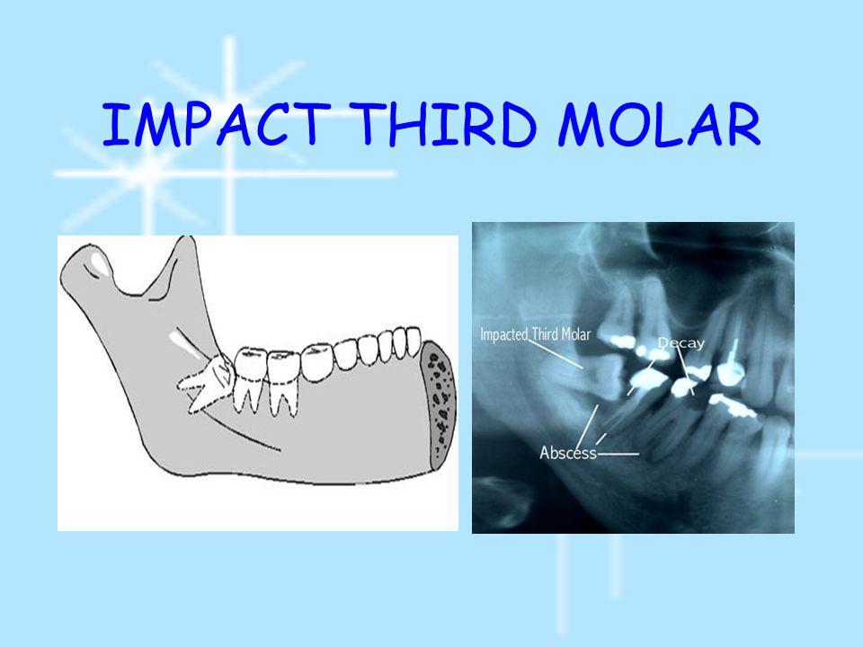 Complication of operation เกิดอันตรายต่อ inferior alveolar nerve แ ละ lingual nerve