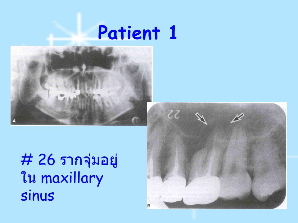Patient 1 # 26 ร ากจุ่มอยู่ ใน maxillary sinus