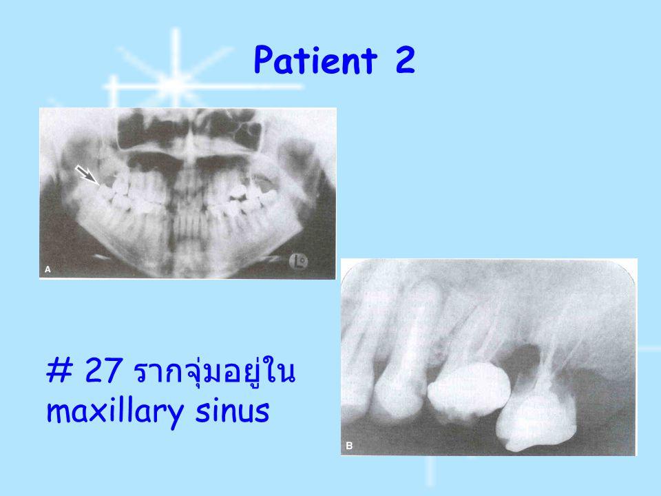 Patient 2 # 27 ร ากจุ่มอยู่ใน maxillary sinus