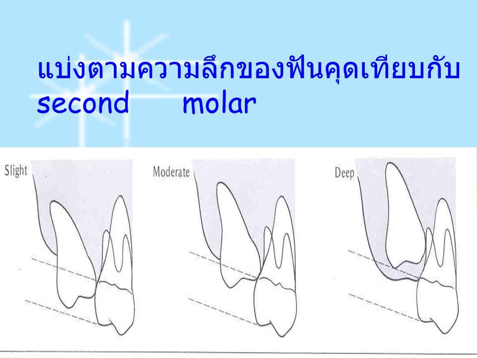 แบ่งตามความลึกของฟันคุดเทียบกับ second molar