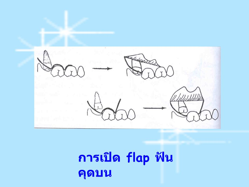 การเปิด flap ฟัน คุดบน